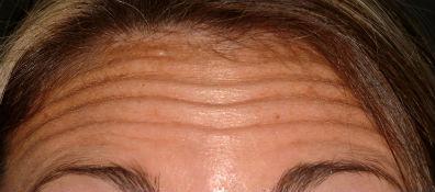 4head wrinkles1